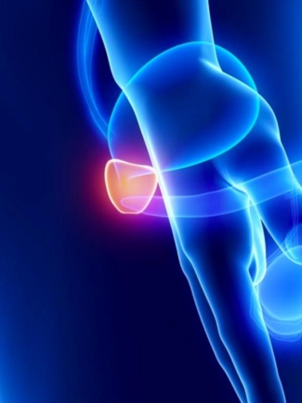 Cáncer de próstata : Su prevención y tratamientos